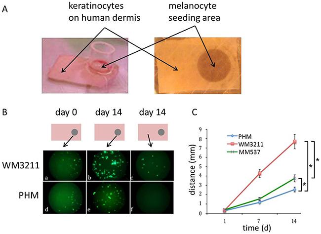 KIT mutant cells migrate faster on human dermis than wild type human melanocytes and BRAF mutant melanoma cells.