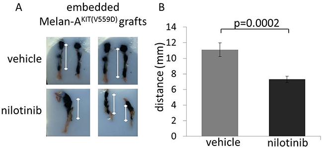 The early use of pharmacologic KIT inhibitors prevents KIT mutant melanocyte migration in vivo.
