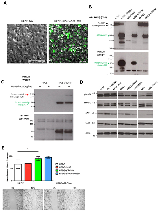 Short form RON induces oncogenic phenotypes and has transforming capacity.