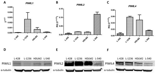 PIWIL1, PIWIL2 and PIWIL4 expression in cHL.