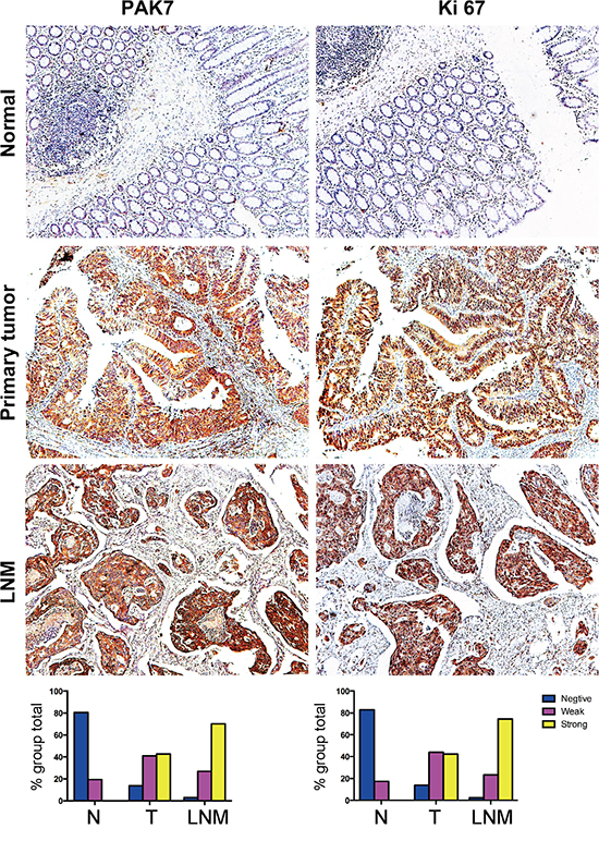 Representative photographs of PAK7 and Ki67 expression in normal colon, colon tumor, and nodal metastasis specimens.