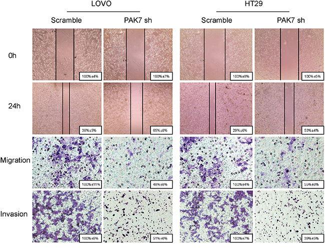 Influence of PAK7 in colon cancer cell migration and invasion.