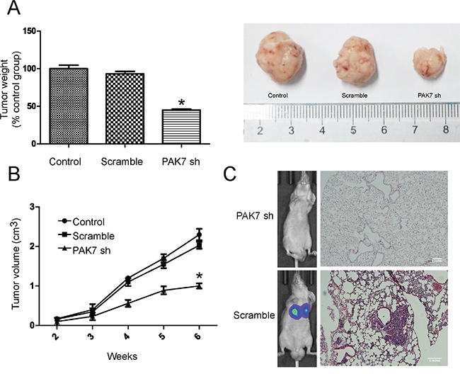 PAK7 inhibition suppresses proliferation and invasion of colon cancer cells in vivo.