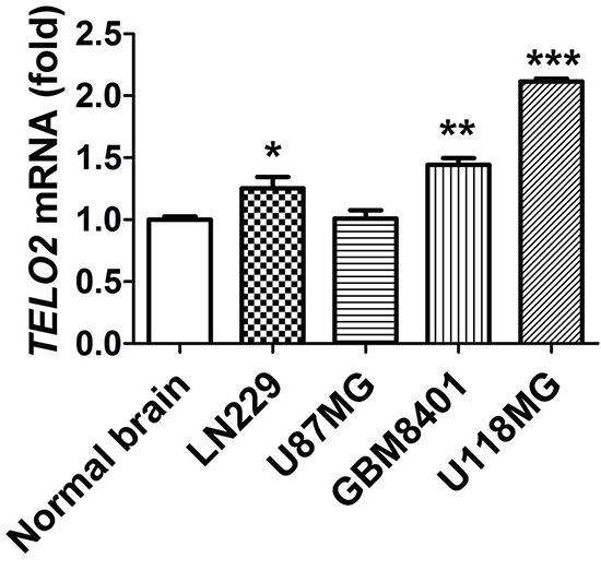 Validation of TELO2 mRNA expression in glioma cell lines and normal brain tissue.