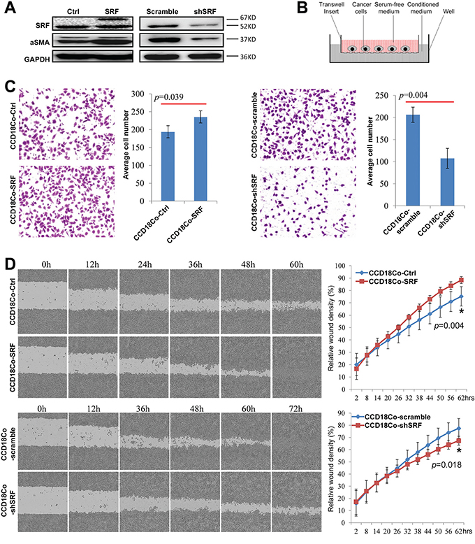 SRF in CCD18Co fibroblasts promotes the migration of cultured cancer cells in vitro.