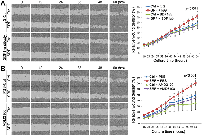 Treatment with anti-SDF1 antibody and AMD3100 reverses the SRF-enhanced migration of MKN45 cells in a wound-healing assay.