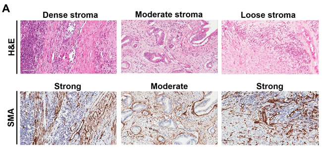 Representative examples of immune cells and markers in pancreatic cancer adenocarcinoma based on tumor stroma density.