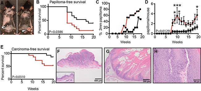 Loss of sAC enhances tumorigenesis in mice.