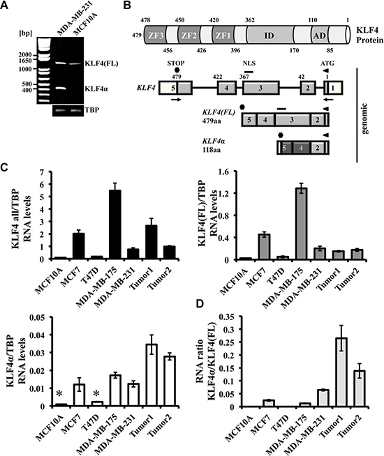 Detection of KLF4α in human breast cancer cells.