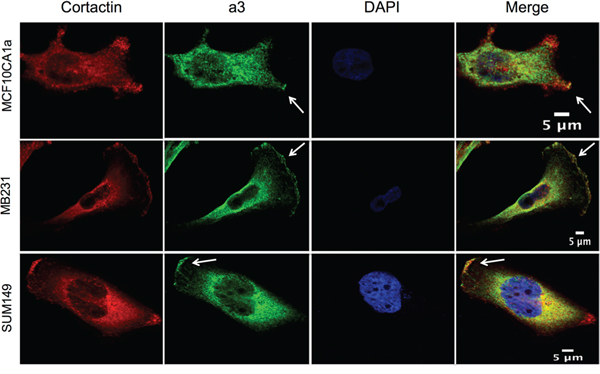 Subunit a3 colocalizes with a leading edge marker in migrating breast cancer cells.