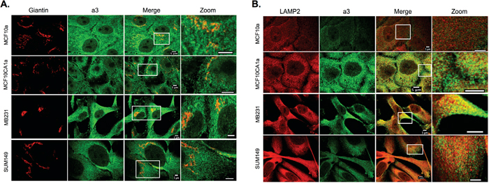 Intracellular localization of subunit a3 and markers for the Golgi apparatus and lysosomes in breast cancer cells.