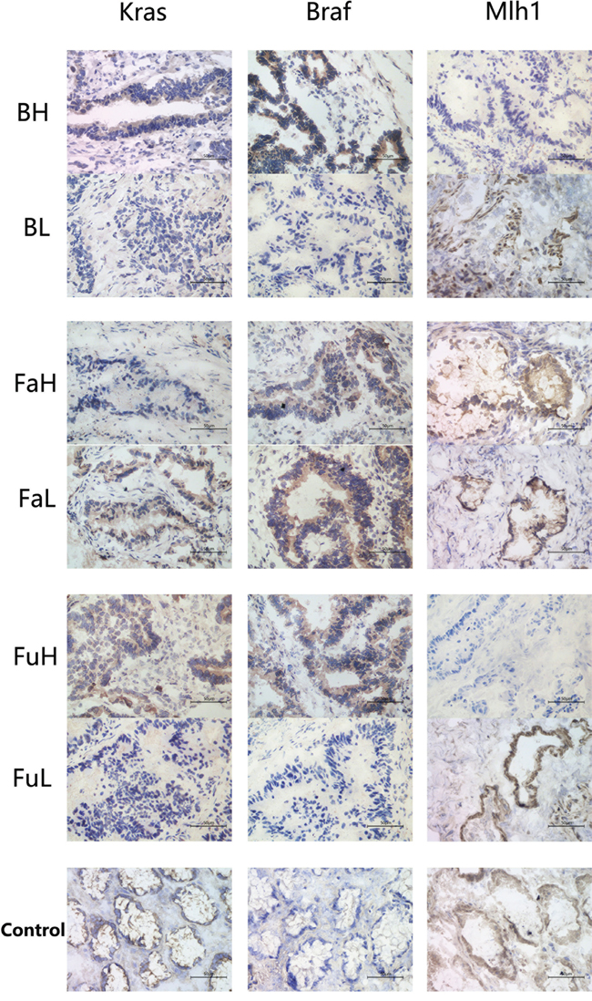 Immunohistochemistry was used to analysis the expression of KRAS, BRAF and MLH1 in cancer tissues with different abundance of B. fragilis, F. nucleatum and F.prausnizii respectively.
