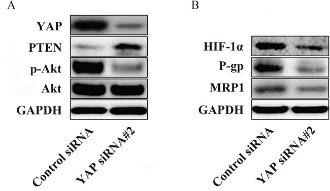 YAP regulates P-gp and MRP1 by regulating the phosphorylation of Akt in Bel/Fu cells.