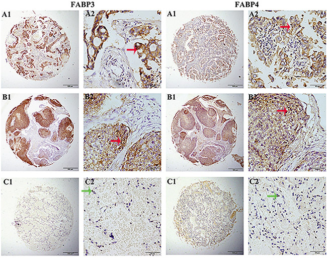 FABP3 and FABP4 protein detection in NSCLC tissues.