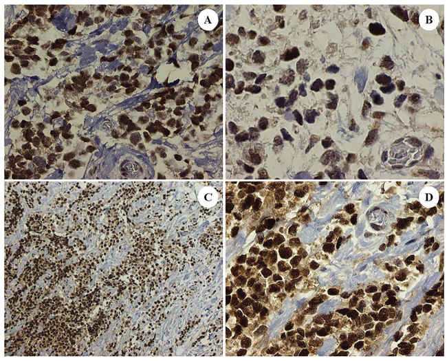 Dedifferentiated tumor cells in the patient's ARMS, PAX3-FKHR subtype showing correlative expression in tumoral nuclei of: Sirt1