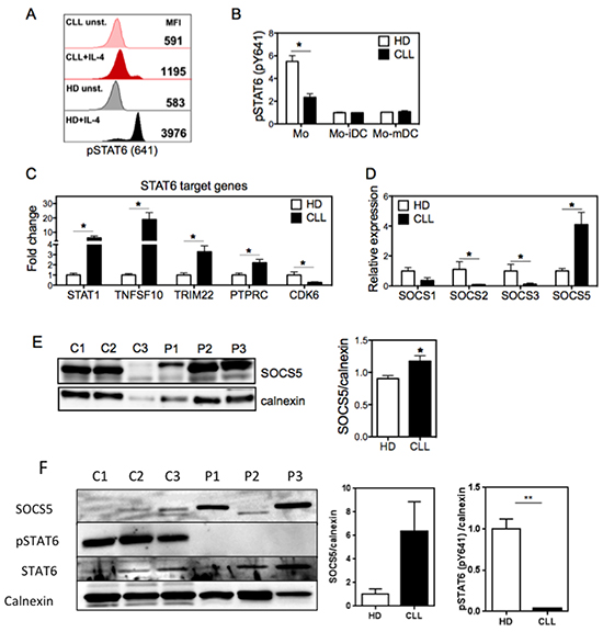 Monocytes from CLL patients show decreased STAT6 phosphorylation in the setting of increased expression of the negative regulator SOCS5.