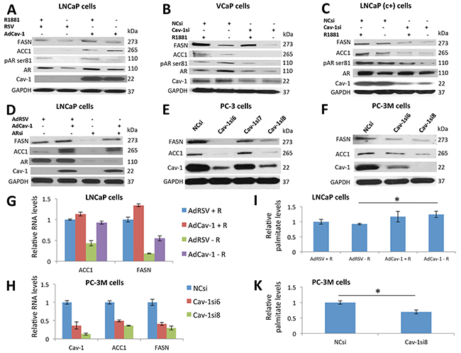 Cav-1 regulated ACC1 and FASN expression in PCa cells in an AR-independent manner at the transcriptional level, promoting palmitate synthesis.