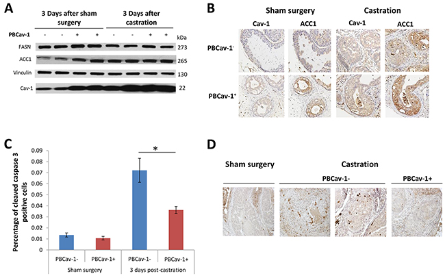 PBCav-1+ mice expressed higher ACC1 and FASN levels, and castration increased Cav-1 and ACC1 expression in PTENcKO tumors.