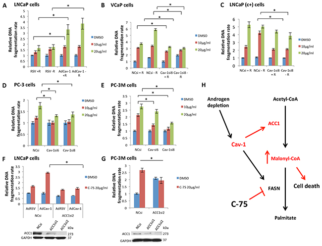 Cav-1 expression increased the sensitivity of PCa cells to the FASN inhibitor C-75, leading to cell death through malonyl-CoA accumulation.