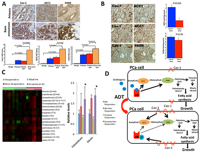 Cav-1, ACC1 and FASN expression in human primary prostate tumors and bone metastases.