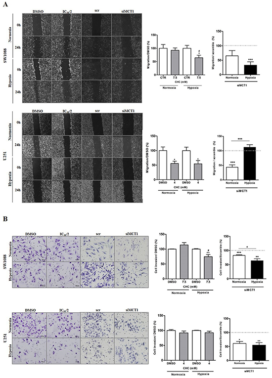 Cell migration and invasion behavior upon MCT1 under hypoxia.