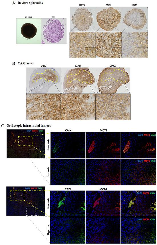 MCT1 and MCT4 expression distribution in 3D culture and in in vivo glioma models.