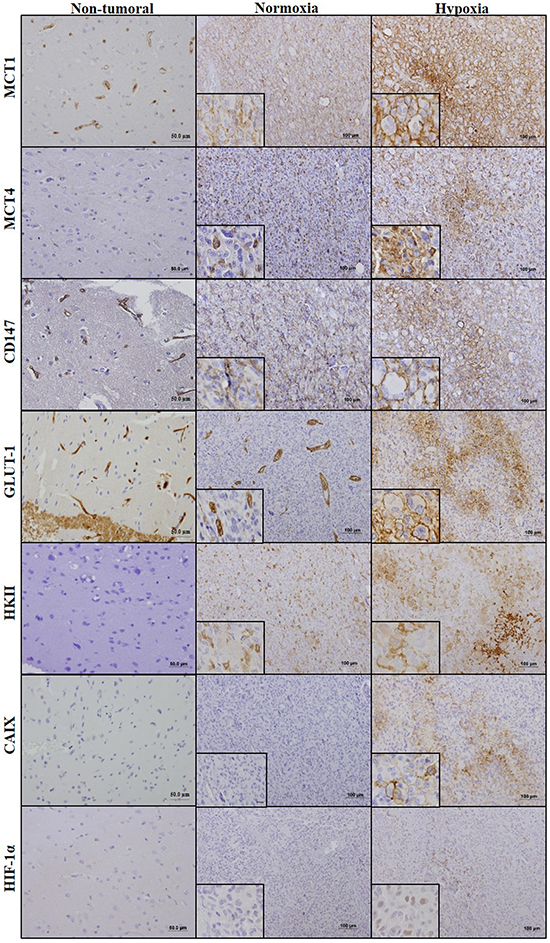 Immunohistochemical expression of monocarboxylate transporters, CD147, GLUT1, HKII, CAIX and HIF-1α in GBM and normal adjacent tissues.