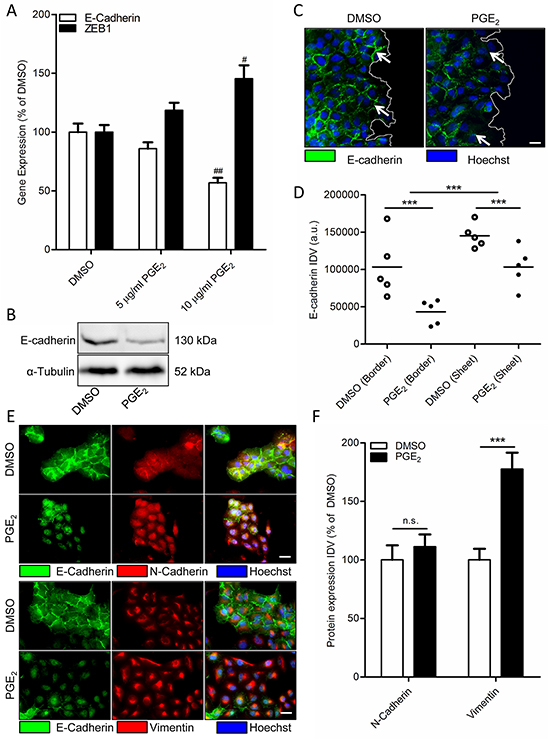 Effect of PGE2 on EMT in A549 cells.