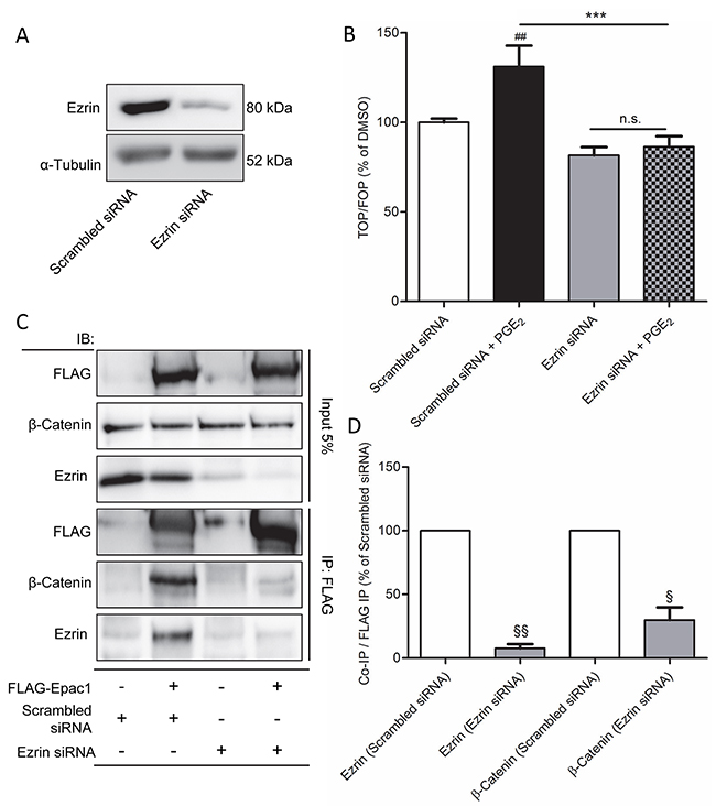 Ezrin knockdown prevents PGE2-induced β-catenin transcriptional activity in A549 cells.