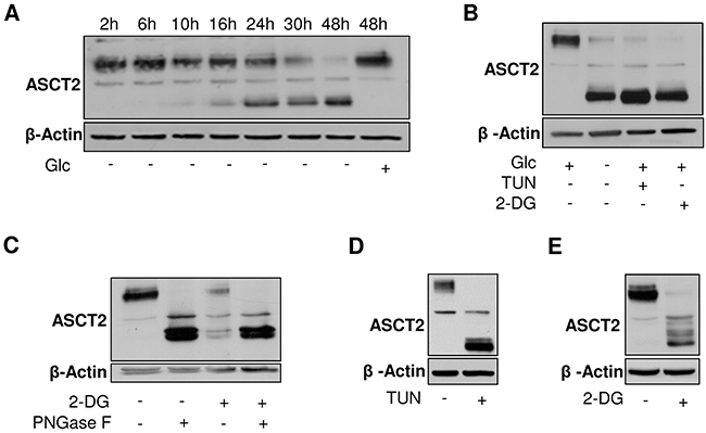 Glycosylation of ASCT2 is dependent on glucose availability.