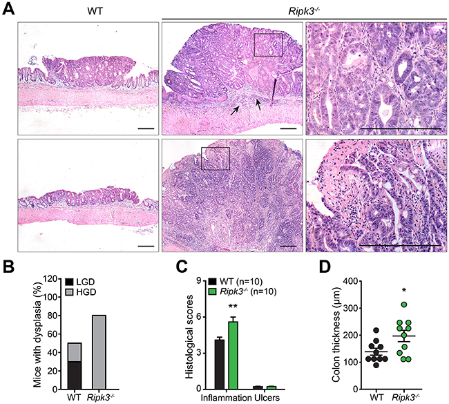 RIPK3-deficient mice are prone to DSS-induced colon tumor development.