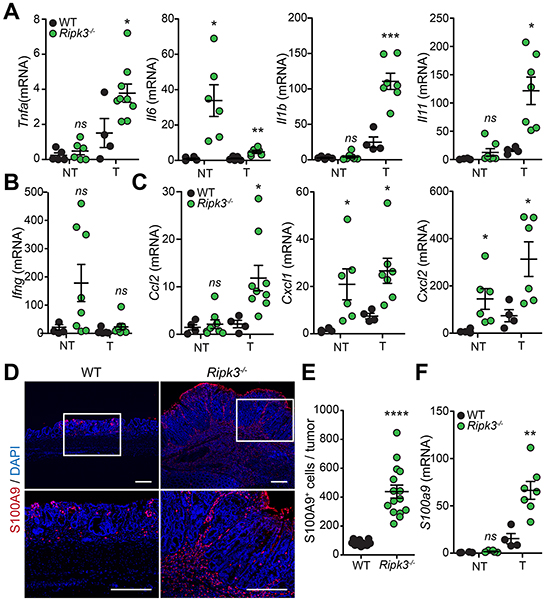 Loss of RIPK3 enhances colon inflammation and immune cell infiltration during tumor development.