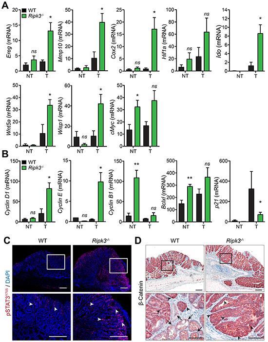 RIPK3 controls intestinal expression of angiogenic, mitogenic, and pro-tumorigenic genes.