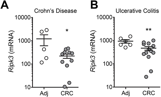 Decreased expression of RIPK3 in colonic mucosa of patients with colitis-associated CRC.
