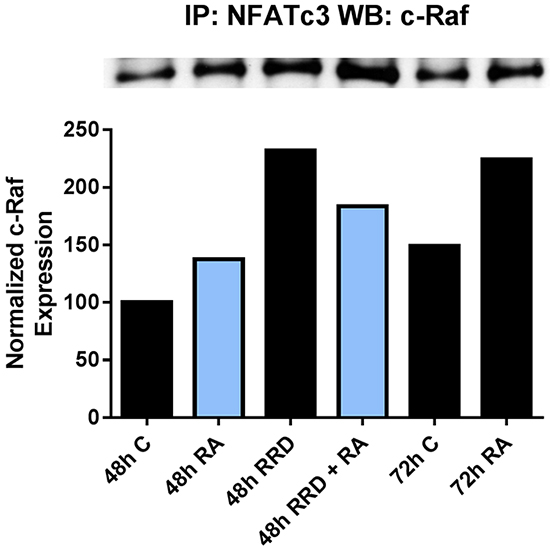 RRD-251 increases the RA-induced c-Raf-NFATc3 interaction.