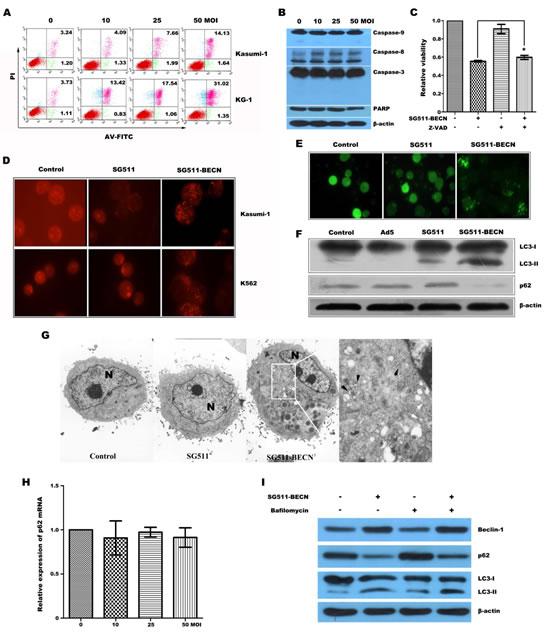 SG511-BECN virus induced cell death involves autophagy in leukemia cells.