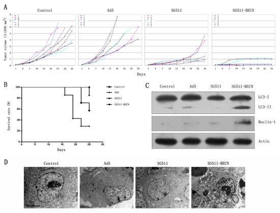 Antileukemic efficacy of SG511-BECN in established K562 tumors