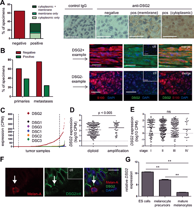 DSG2 is expressed in human primary and metastatic melanoma tissue.