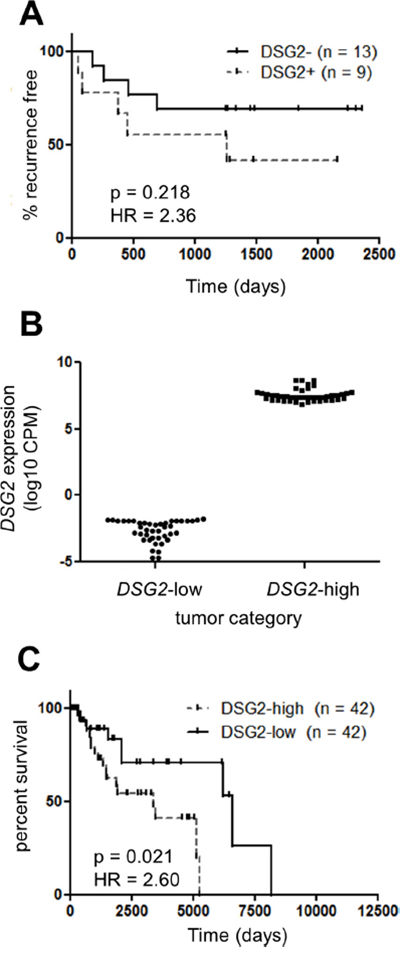 DSG2 over-expression in melanoma is associated with poor clinical outcome.