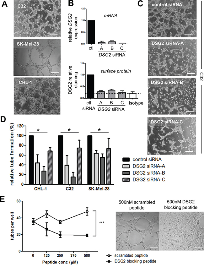 DSG2 regulates the formation of tube-like structures by melanoma cells on Matrigel.