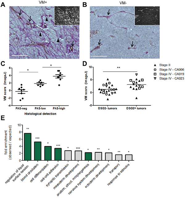 Expression of DSG2 in patient tumors is associated with increased VM.
