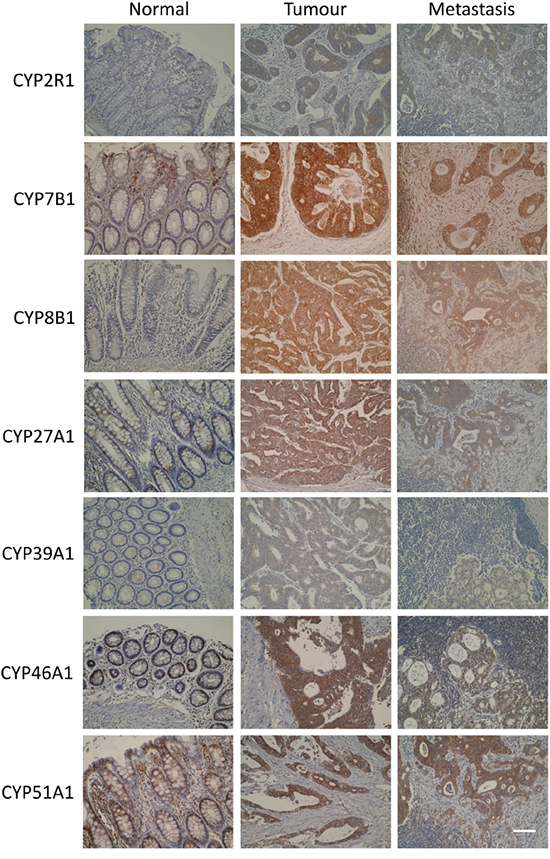 Photomicrographs of CYP2R1, CYP7B1, CYP8B1, CYP27A1, CYP39A1, CYP46A1 and CYP51A1 in normal colonic mucosa, primary colorectal cancer and metastatic colorectal cancer (original magnification x 300, scale bar represents 100μm).