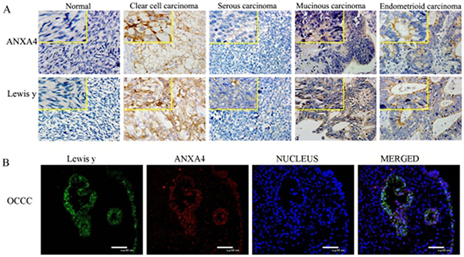 Expression of ANXA4 and Lewis y in various ovarian tissue (400 *).