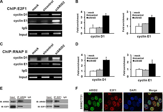 ARID2 interacts with E2F1 and reduces E2F1 binding with CCND1 and CCNE1 promoters.