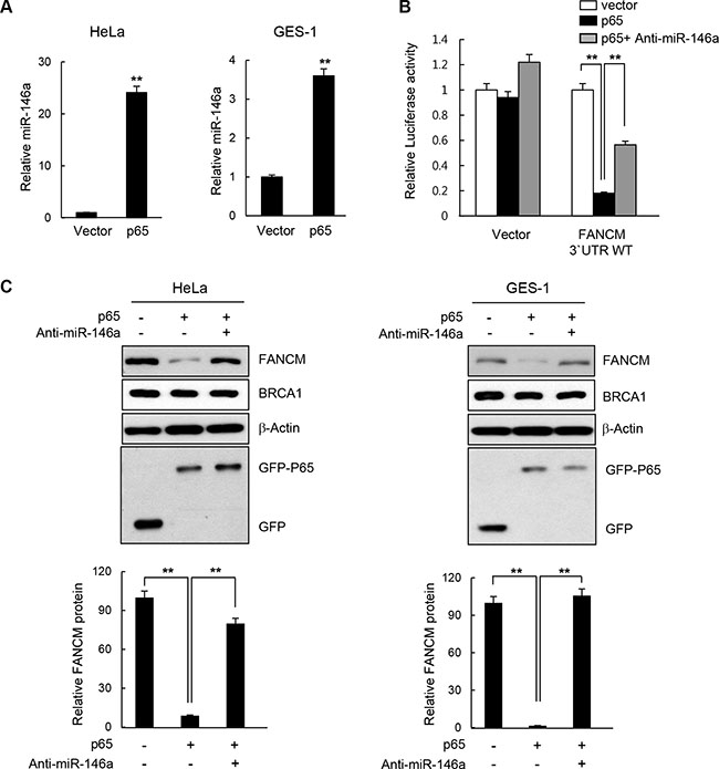 Effect of NF-κB on FANCM expression.