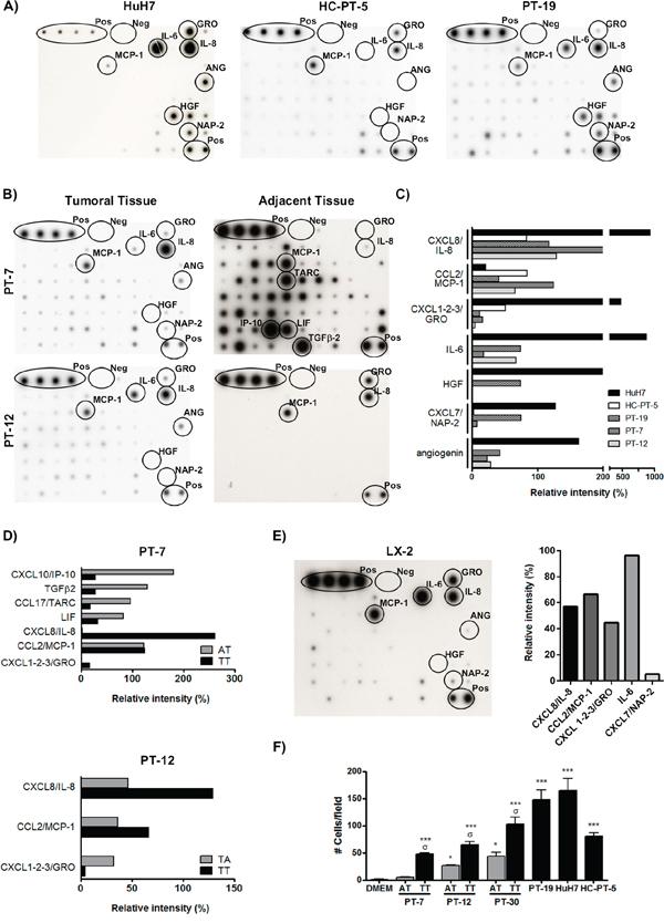 HCC factors induce MSC in vitro chemotaxis.