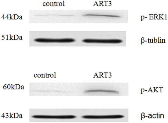 ART3 overexpression increases AKT and ERK (ERK1 was detected only) activation in breast cancer cells.