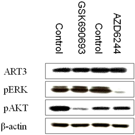 p-AKT and p-ERK inhibition does not influence ART3 expression.