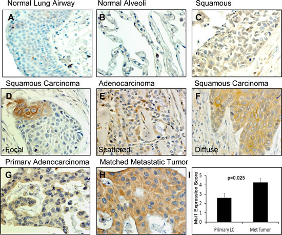 Msi1 expression patterns in lung cancers.