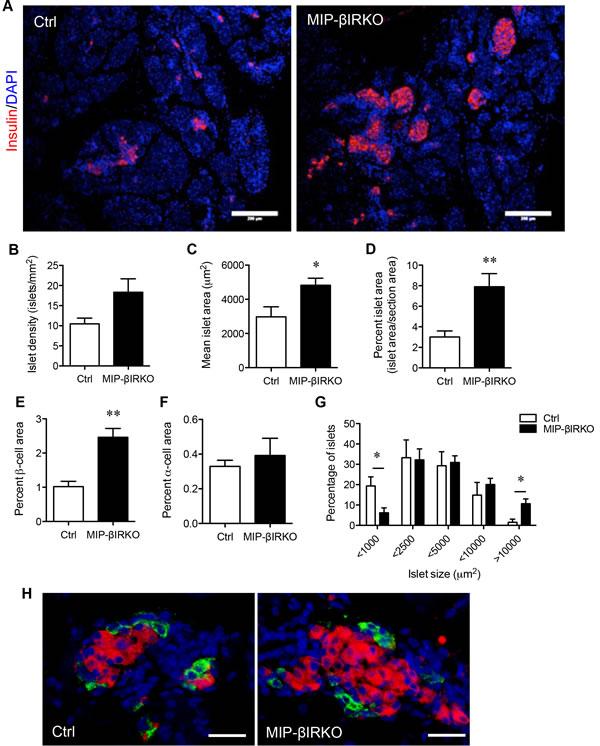 Fetal MIP-βIRKO mice display an islet hyperplastic growth response.